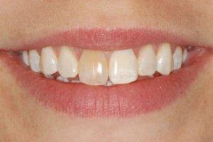 Фото: Потемнел зуб