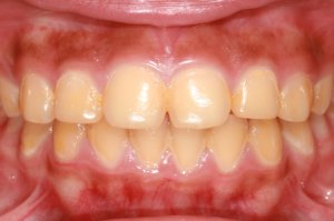 Фото: Никотин и смолы делают зубы желтыми