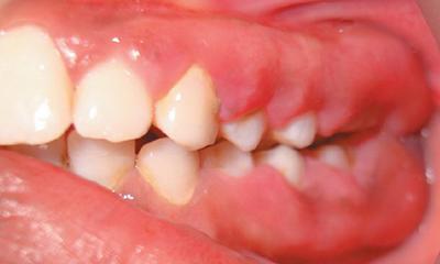 У ребенка гингивит формы заболевания сопутствующие симптомы методы лечения и профилактические меры