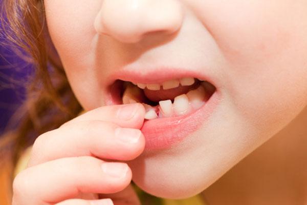 Когда у детей выпадают молочные зубы и что делать после их выпадения