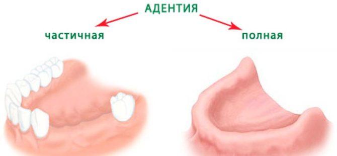 Молочные коренные зубы