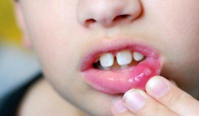 Как распознать и устранить вирусный стоматит: современный подход к лечению. Вирусный стоматит у детей: симптомы и лечение Стоматит вирусное заболевание или нет