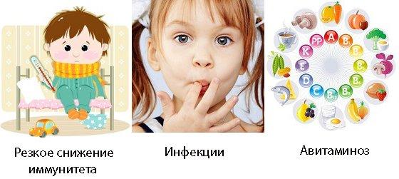 Воспаление полости рта у детей гингивит у ребенка