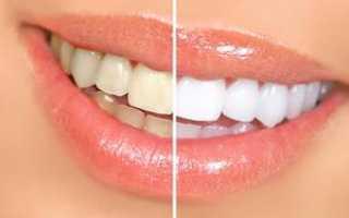 Отбеливание зубов какой способ лучше