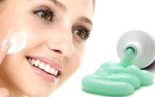 Правда ли, что зубная паста поможет от прыщей