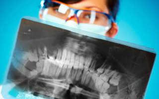 Рентген челюсти взрослого человека