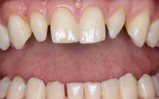 Форма зубов у детей