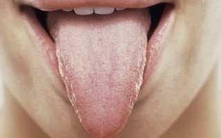 Воспаление языка причины лечение