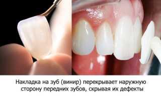 Декоративные накладки на зубы