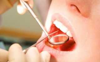 Больно накусывать на зуб после пломбирования