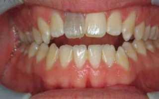 Может ли мертвый зуб болеть