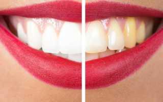 Отбеливание зубов Air Flow — верните улыбке природную белизну!