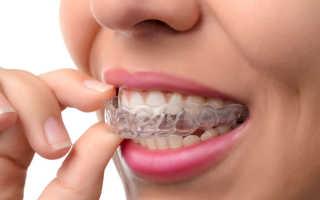 Отклеился ретейнер на одном зубе: что делать, достоинства и недостатки ретейнеров