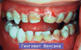 Язвенный гингивит лечение