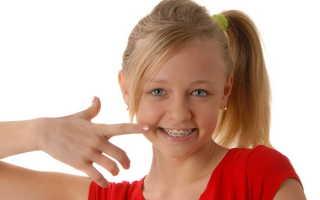 Что нужно знать о брекетах для детей: виды