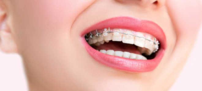 Зубы в брекетах болят: что делать