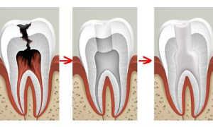Болит депульпированный зуб при постукивании