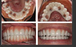 Как крепятся зубы к челюсти