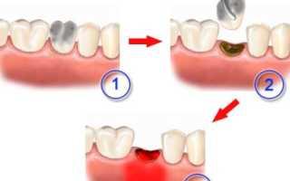 Альвеолит после удаления зуба — симптомы и лечение