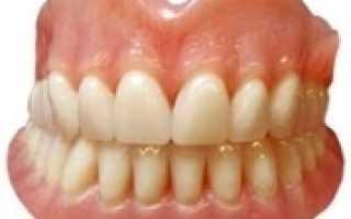 Силиконовые зубные протезы что это такое