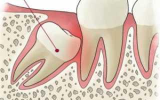 Симптомы после удаления зуба мудрости