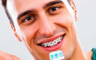 Ответ на вопрос: можно ли курить с системами брекетов на зубах?