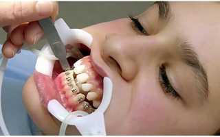 Особенности применения брекетов H4 для ортодонтического лечения