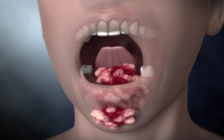 Опухоль во рту на щеке