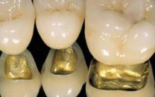 Коронка на мертвый зуб: описание, виды