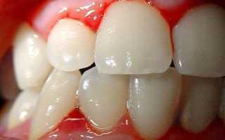 Зубная паста при кровоточивости десен какая лучше