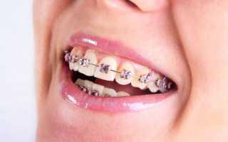 Назначение и эволюция сепарационного кольца в ортодонтии
