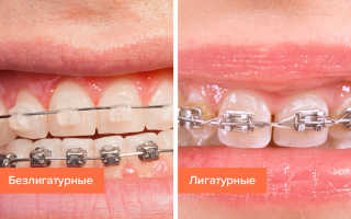 Лигатурные и безлигатурные брекеты: особенности и отличия