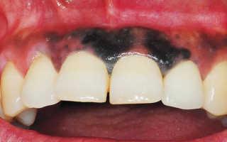 Темное пятно на десне около зуба