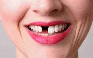 Удаление верхнего зуба