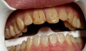 От чего темнеют зубы