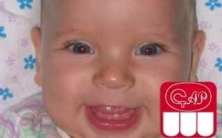 Почему у ребенка 8 месяцев нет зубов