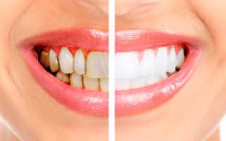 Как снять зубные камни в домашних условиях