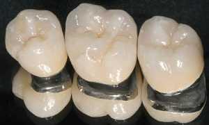 Металлокерамическая коронка на зуб – описание, преимущества