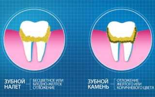 Зубной камень на нижних передних зубах