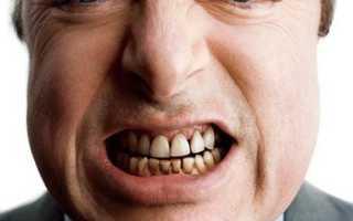 Черный налет на зубах с внутренней стороны