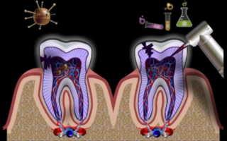Воспаление зубного канала