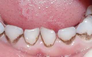 Почему зубы черные