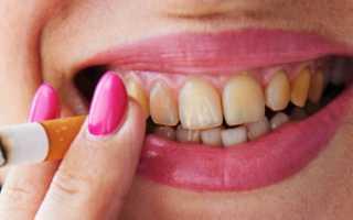 Налет от сигарет на зубах