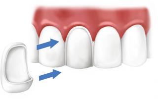Виниринговое покрытие зубов – что это значит
