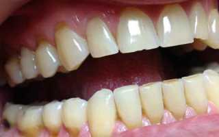 Световые пломбы на передних зубах