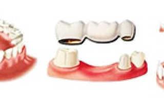 Разновидности материалов для съемных зубных протезов