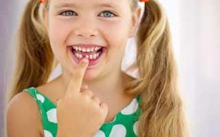 Какие молочные зубы выпадают у детей первыми