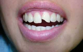 Из за чего крошатся зубы у взрослых