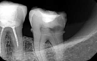 Кариес на рентгеновском снимке