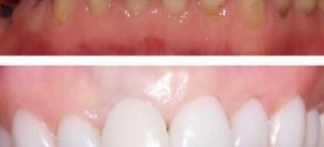 Виниры на зубы минусы и плюсы